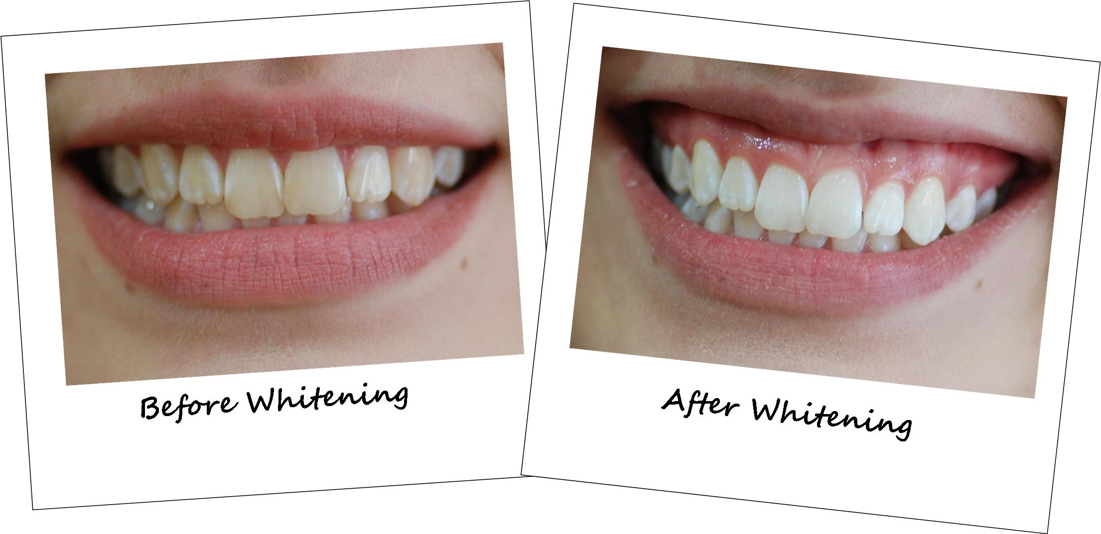 Teeth Whitening Could Force You To Appear Younger Teeth Whitening